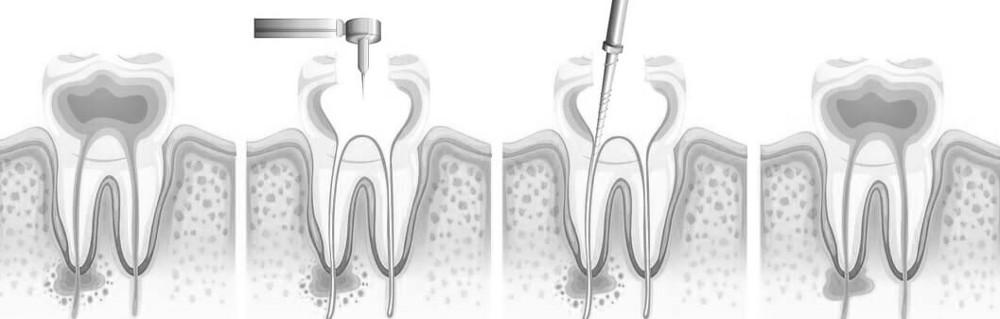 Wurzelspitzenresektion beim Zahnarzt